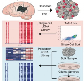 SC GBM brain
